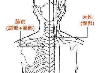 艾灸穴位(九)大椎穴