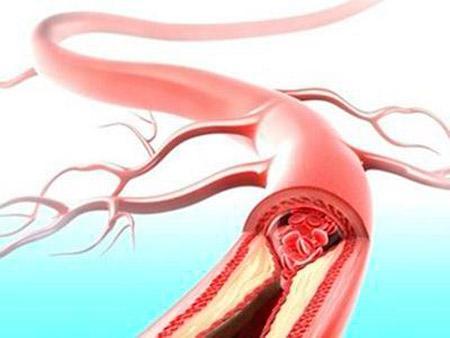 软化血管保健品
