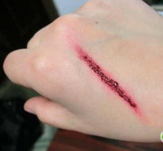 s小伤口怎么处理